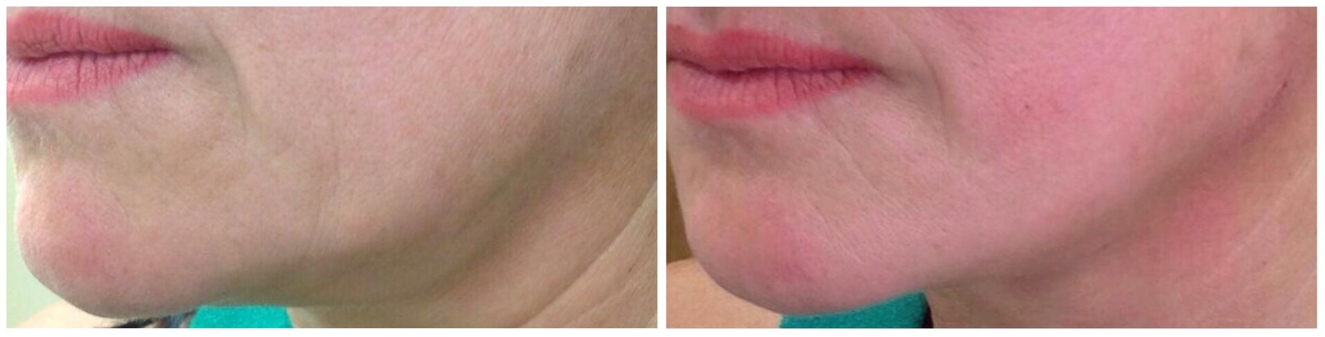 Myths & Facts about the Thread Face Lift - Changes Clinic