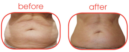 affordable alternative to liposuction