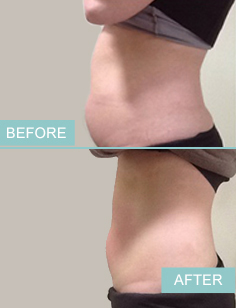 before-after-liposuction