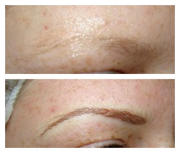 Brow before after