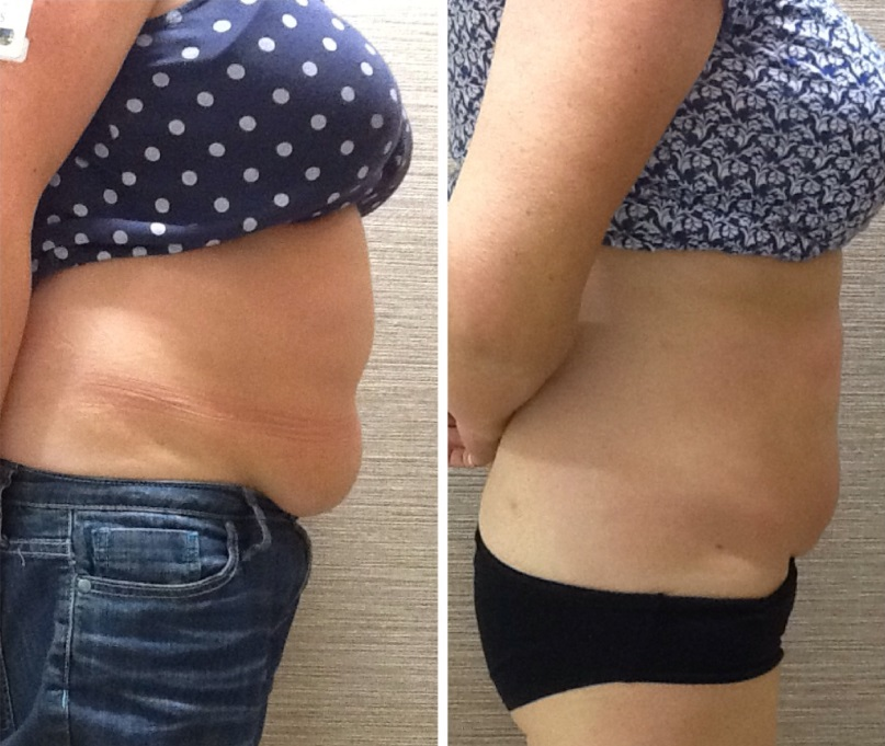 Fat And Cellulite Reduction 41