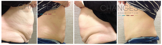 Patient Sue from Hampshire - before after pictures showing dramatic fat reduction results