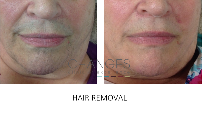 Laser Hair Removal Ipl Hair Removal In Hampshire Changes Clinic