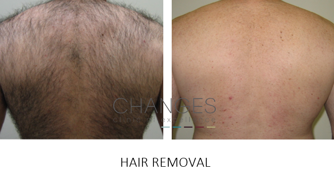 LASER HAIR REMOVAL IPL PORTSMOUTH HAMPSHIRE 2