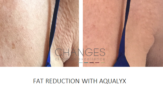 AQUALYX BODY SCULPTING FAT LOSS PORTSMOUTH HAMPSHIRE 2