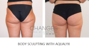 AQUALYX FAT REDUCTION FAT LOSS BODY SCULPTING PORTSMOUTH HAMPSHIRE