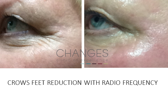 Radio frequency for Fine Lines and Wrinkles Crows Feet