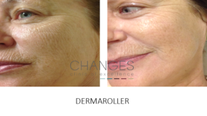 DERMAROLLER SKIN CARE TIGHTENING FINE LINES AND WRINKLES PORTSMOUTH HAMPSHIRE
