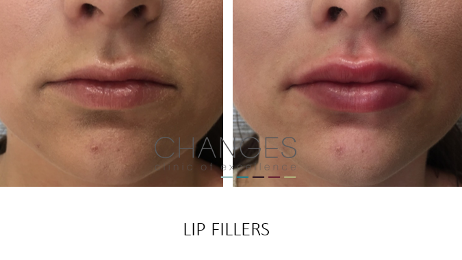 Lip Fillers, Lip Augmentation, Injections & Enhancements