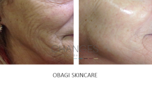 OBAGI SKIN CARE FINE LINKES AND WRINKLES PORTSMOUTH HAMPSHIRE