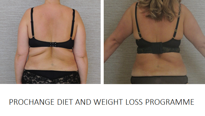 PRO CHANGE WEIGHT LOSS PROGRAMME DIET PORTSMOUTH HAMPSHIRE