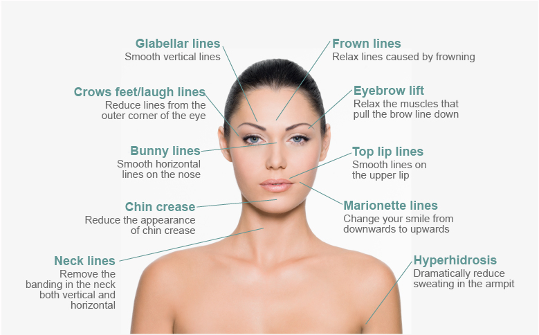 Difference between botox injections vs dermal fillers
