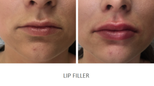 Lip Fillers & Lip Augmentation Done Well for Great Results - Changes