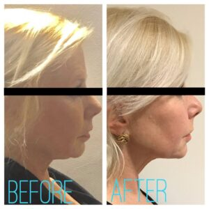 thread facelift
