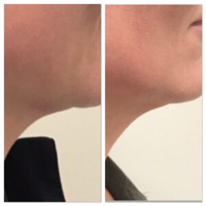 non surgical double chin removal