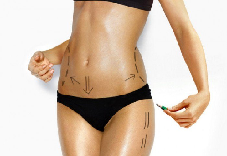 MicroLipo, Microcannular Liposuction