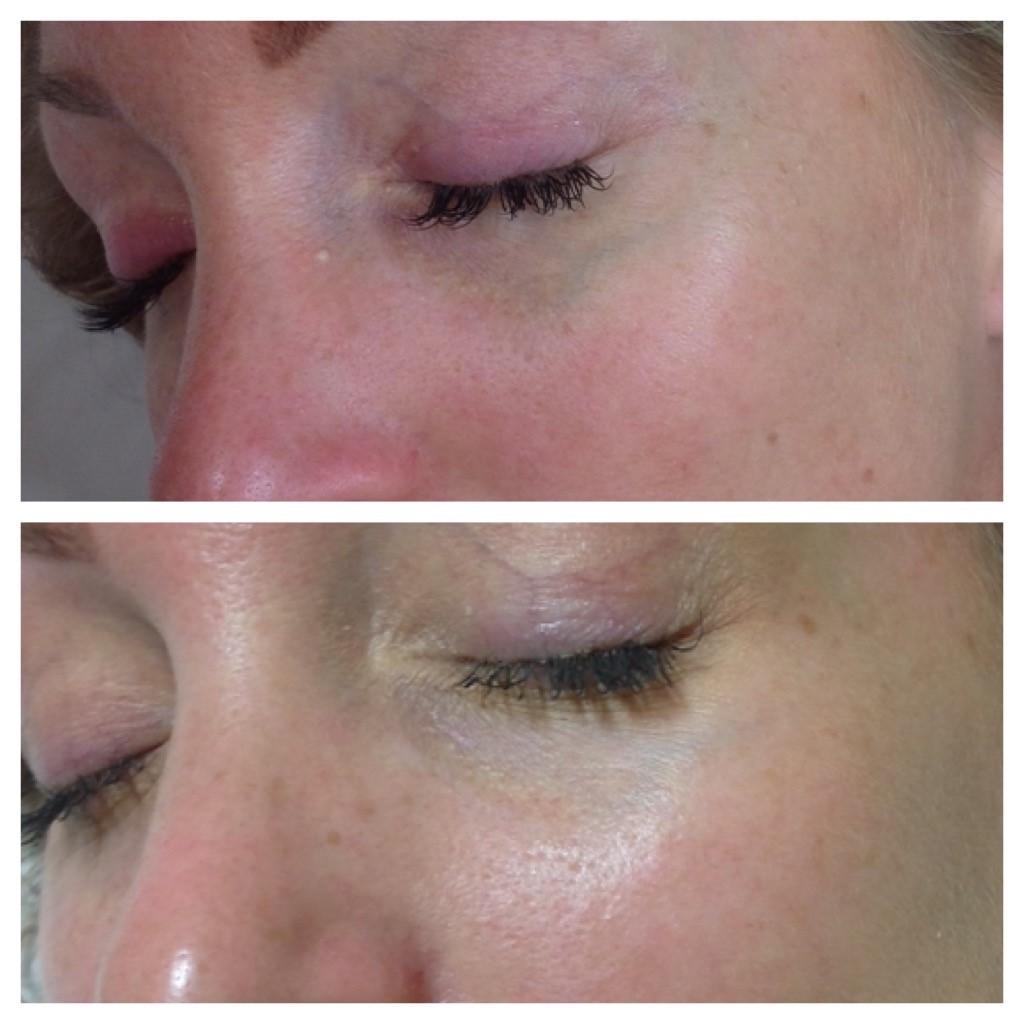 Skin Tag, Mole and Milia Removal - Changes Clinic, Portsmouth