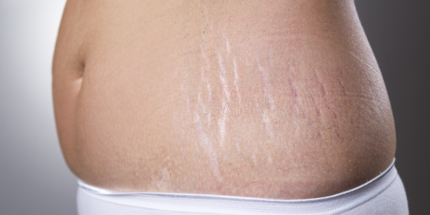 Stretch Mark Treatments