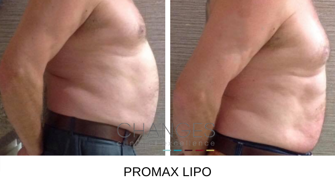 ProMax Lipo for Men Before and After