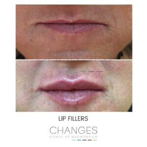 LIP FILLERS THIN LIPS - BEFORE AND AFTER