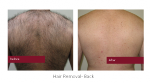 Hair Removal - Back