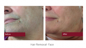 Hair Removal - Face