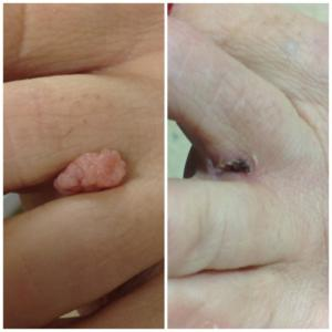 Skintag removal by Rachel ( Toes)